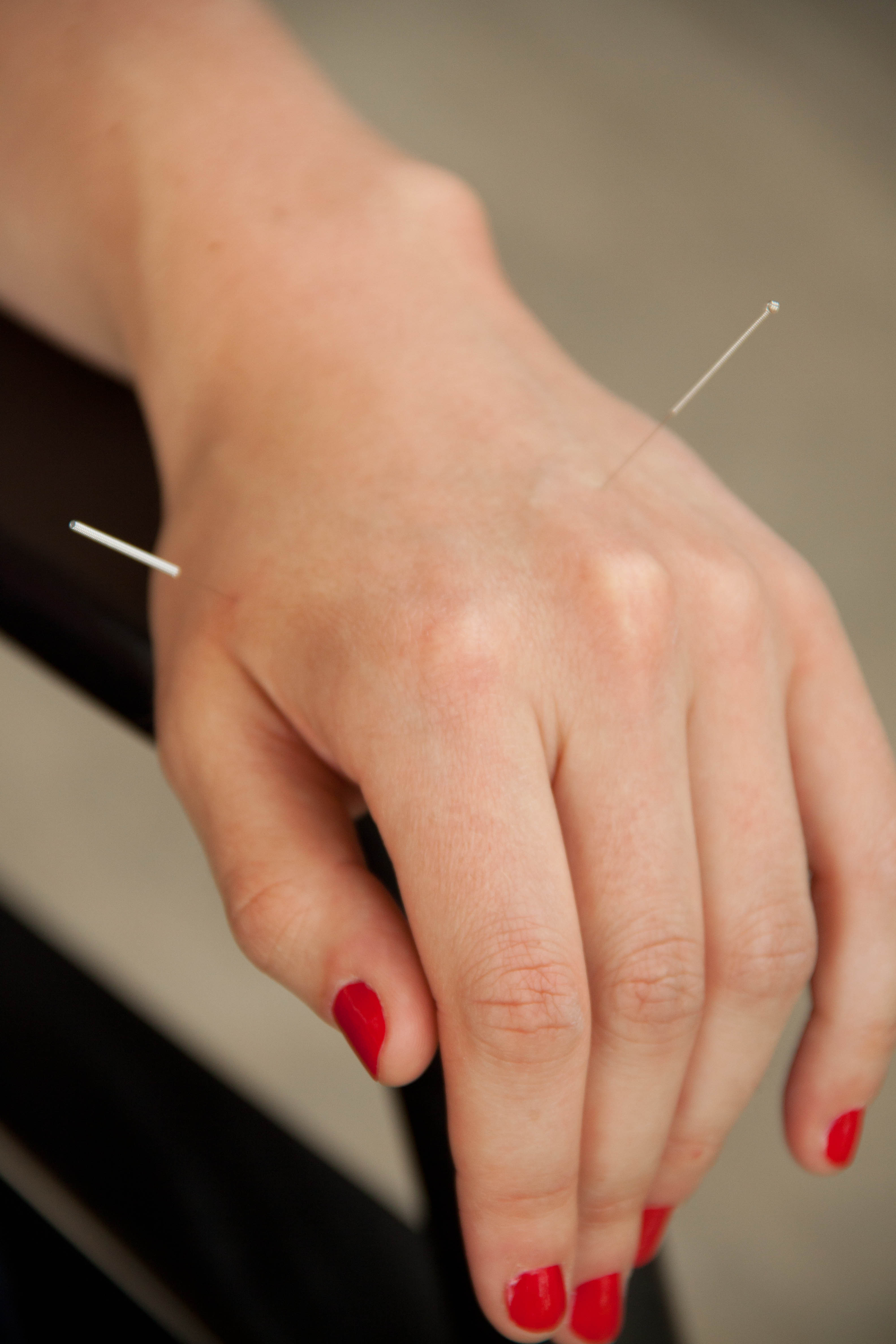 What does Acupuncture Treat?